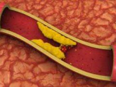 Медики рассказали, как бороться с высоким уровнем холестерина