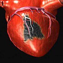 Кардиолог указал на первые видимые симптомы болезней сердца
