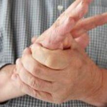Названы основные причины онемения рук
