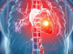 Инфаркт при гипертонии