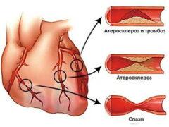 Повреждения кровеносных сосудов