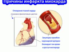 Причины развития инфаркта миокарда