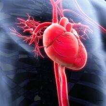 Обзор ишемической болезни сердца