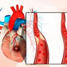 Ранняя лабораторная диагностика инфаркта