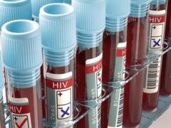 ВИЧ увличивает смертность от сердечно-сосудистых заболеваний