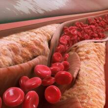 Здоровье ваших артерий