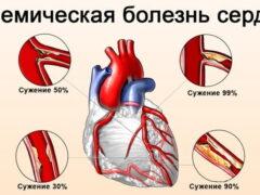Общая картина ишемической болезни сердца