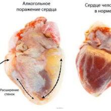 Умеренное употребление алкоголя снижает риск смерти от болезней сердца и общий риск смерти