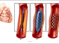 Ангиопластика и стентирование